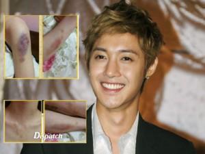 แฟนคลับ แห่ให้กำลังใจคิมฮยอนจุง สู้ข้อหาทำร้ายแฟนเก่า