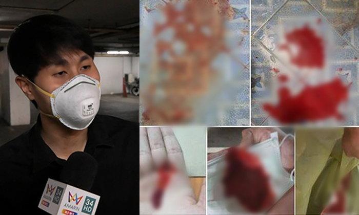 หนุ่มไอเป็นเลือด ปอดติดเชื้อรุนแรง เชื่อพิษฝุ่น PM 2.5 อยู่จุดอันตรายไม่เคยใส่หน้ากาก