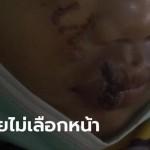 แก๊งโจ๋คะนองปาขวดใส่เด็กสาว 16 ตอนขี่รถกลับบ้าน หน้าแหกยับ-ฟันหัก 4 ซี่